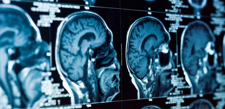 Scientists Locate the Physical Source of Depression in the Brain